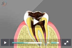 Progression of Dental Decay