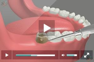Third Molar Extraction - Erupted Tooth (Mandibular)