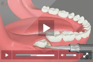 Third Molar Extraction - Vertical