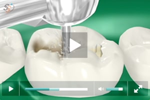 Tooth Colored Fillings - Class I